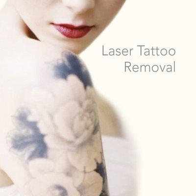 Laser You