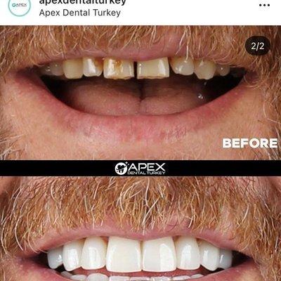 Apex Dental Turkey