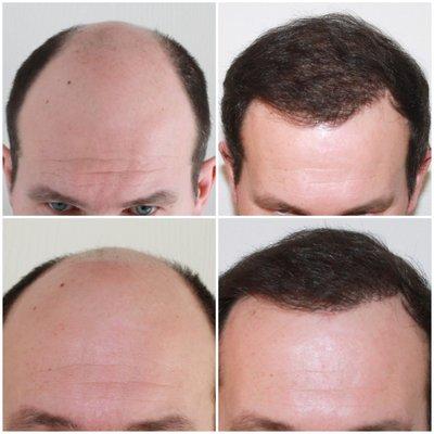 Capital Hair Restoration - Hampshire