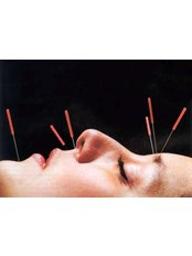 Cosmetic Acupuncture - Cork Acupuncture Clinic