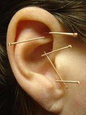 Auricular Acupuncture - Acupuncture 4 Women - Dublin City Centre