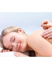 Electro-Acupuncture - Acupuncture 4 Women - Lucan