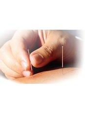 Acupuncturist Consultation - AcuHealthcare