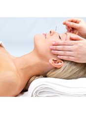 Facial Acupuncture - Prime Meridian Acupuncture Clinic