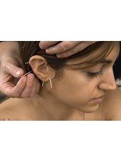 Auricular Acupuncture - Shaftesbury Clinic