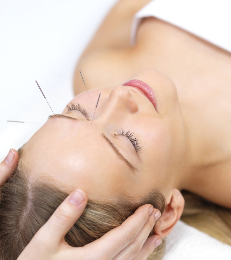 Acupuncture Norwich @ The Skin Lounge
