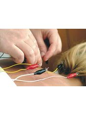 Electro-Acupuncture - Healing Hands at Basford Clinic