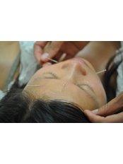 Acupuncture Treatment - Tam Duc TMC