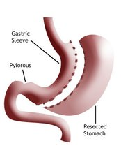 Gastric Sleeve - The Health Clinic