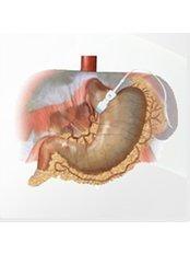 Gastric Band - Belgium Surgery Services - Dublin
