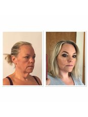 Facelift - KCM Clinic Wroclaw
