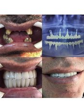 Dental Implants - Apera Health Group