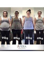 Gastric Sleeve - Apera Health Group