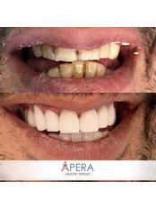 Veneers - Apera Health Group