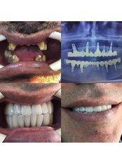 Dental Implants - APERA Slim