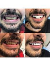 Dental Crowns - APERA Slim
