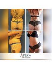 Medical Aesthetics Specialist Consultation - APERA Slim