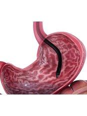 POSE - Primäre endoluminale Adipositaschirurgie - Istanbul Bariatric Center
