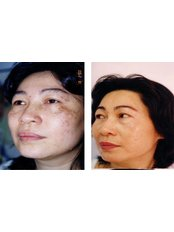 Pigmentation treatment  - Nuevo Cosmetic Clinic