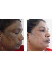 Age Spots Removal - Nuevo Cosmetic Clinic
