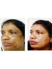Skin Chemical Peel - Nuevo Cosmetic Clinic