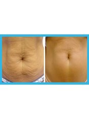 Thermage Radiofrequency Body Contouring - Saphira Thermage - Sydney
