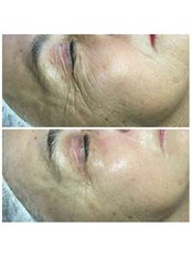 After 1 BYONIK Laser  - Dr Cosima Medispa