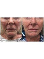 Laser Skin Tightening - Dr Cosima Medispa