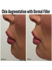 Chin Augmentation - Dr Cosima Medispa