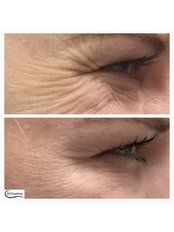 Crows feet  - Dr Cosima Medispa
