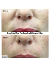 Nasolabial Fold Treatment with Dermal Filler - Dr Cosima Medispa