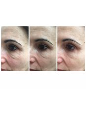 Laser Wrinkle Reduction - Dr Cosima Medispa
