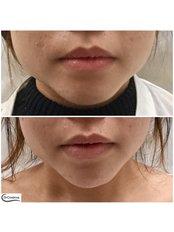 Jaw Contouring (non-surgical) - Dr Cosima Medispa