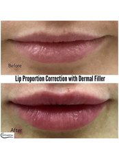 Lip Proportion Correction with Dermal Filler - Dr Cosima Medispa
