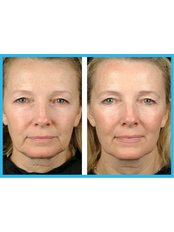 Thermage™ Face - Saphira Thermage - Brisbane