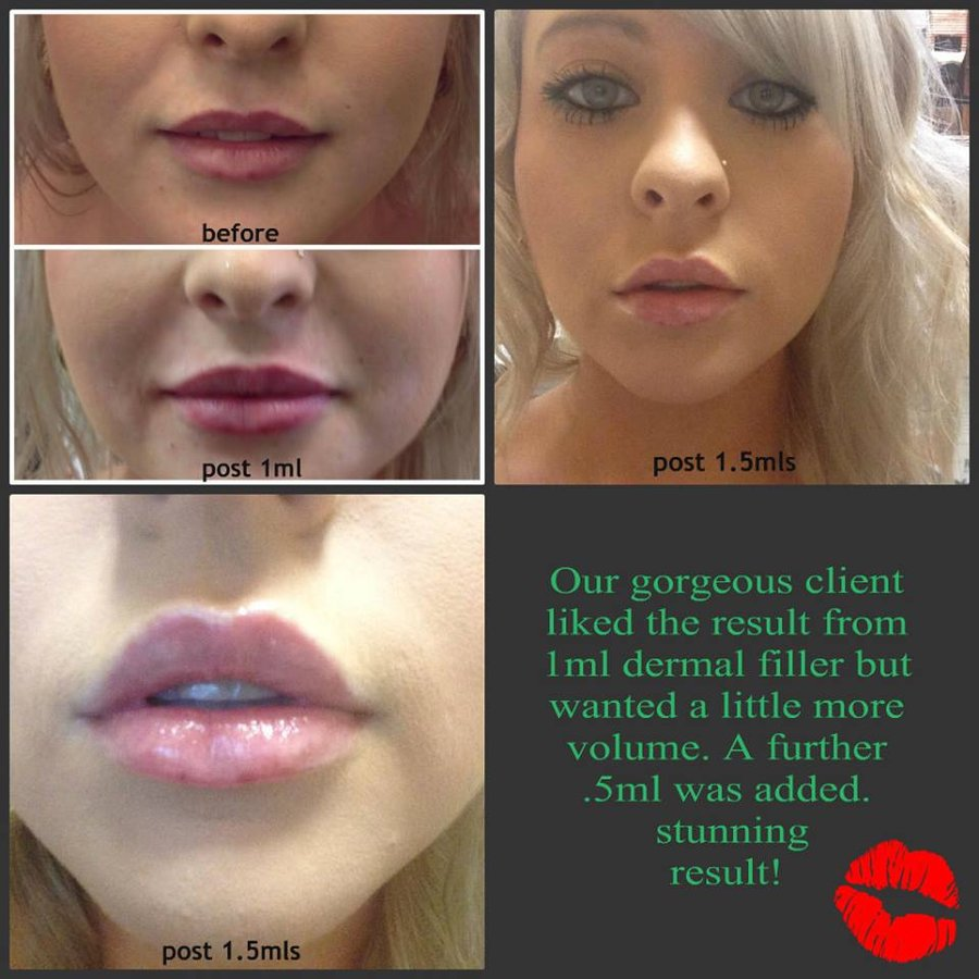 lips to love laser clinic | Lipstutorial org