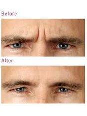 [Treatment name removed]_44_Renaissance Skin Care - True Aesthetics @ Berwick