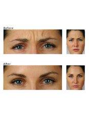 [Treatment name removed]_4_Renaissance Skin Care - True Aesthetics @ Berwick