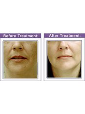 Pigmentation Treatment - Instant Laser Clinic