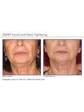 Laser Skin Tightening - Instant Laser Clinic