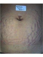 Laser Skin Resurfacing - Instant Laser Clinic