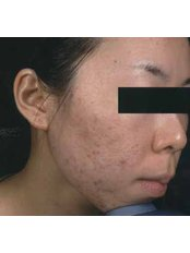 Acne Scars Treatment - Instant Laser Clinic