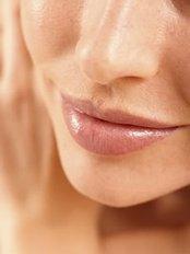 Lip Augmentation - Instant Laser Clinic