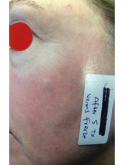 Facial Rejuvenation - Instant Laser Clinic