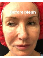 Blepharoplasty - Absolute Cosmetic Medicine Dunsborough
