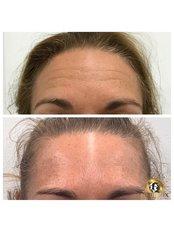 Fibroblast Plasma Pen - Equinox Beauty and cosmetic clinic