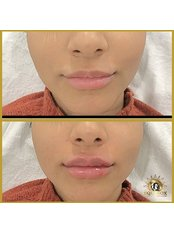 Lip Fillers  - Equinox Beauty and cosmetic clinic