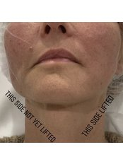 Thread Face Lift - Equinox Beauty and cosmetic clinic