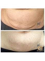 Stretch Marks Removal - Equinox Beauty and cosmetic clinic