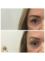 Tear Through Filler - Equinox Beauty and cosmetic clinic